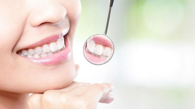 Penyebab Muncul Karang Gigi