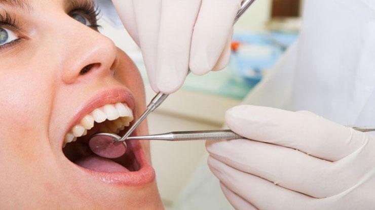 Tujuan Tambal Gigi di Puskesmas