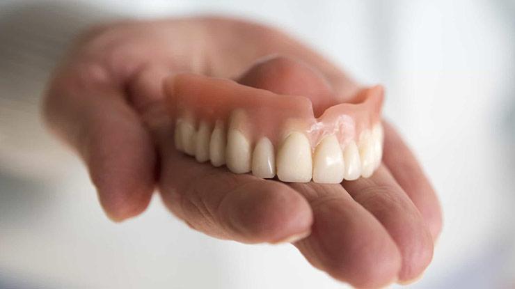 Manfaat Pasang Gigi Palsu