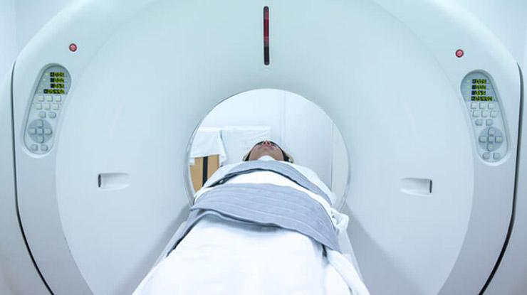 Prosedur CT Scan Kepala di RS Hermina