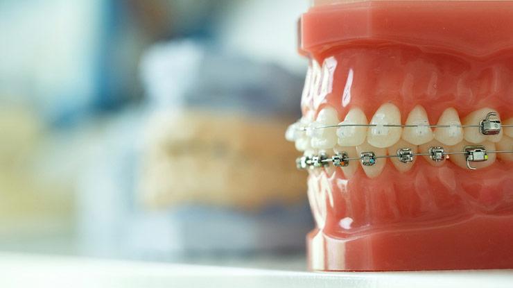 Waktu Pemasangan Behel Gigi