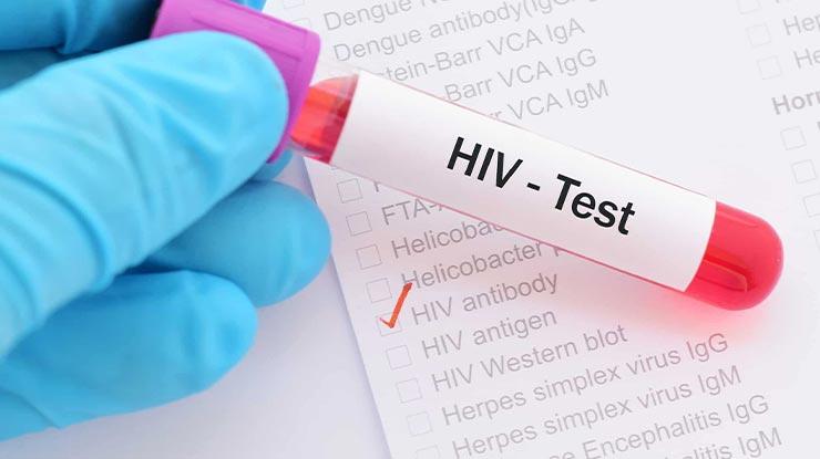 Apa Itu Tes HIV