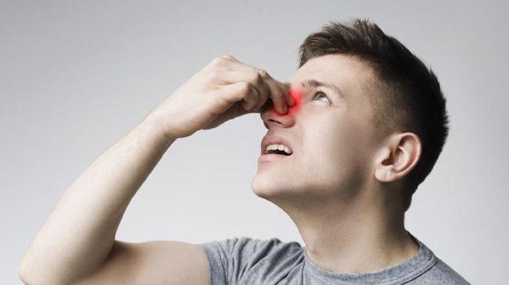 Penyebab Polip Hidung