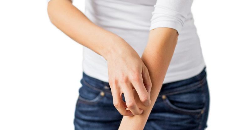 Efek Samping Tes Alergi di Prodia