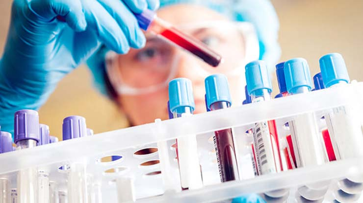 Tujuan Cek Hematologi