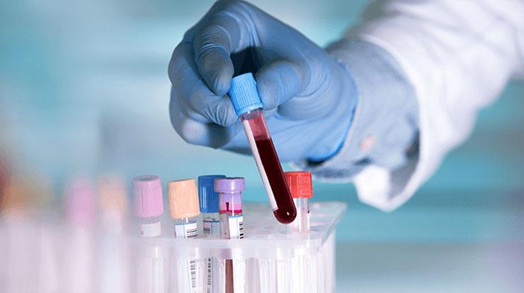Indikasi Tes Golongan Darah
