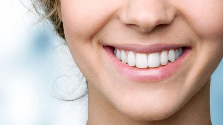 Manfaat Membersihkan Karang Gigi