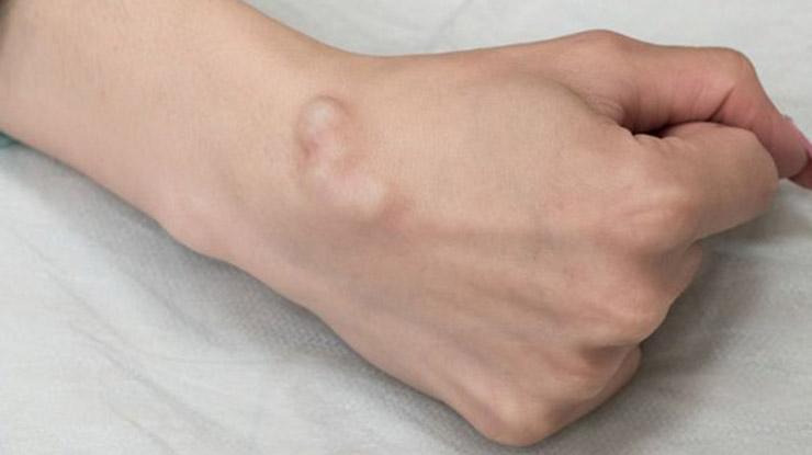 Penyebab Lipoma