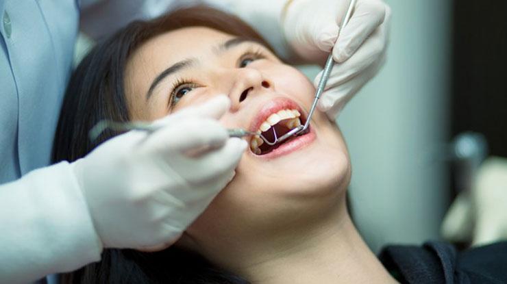 Prosedur Membersihkan Karang Gigi di Kimia Farma