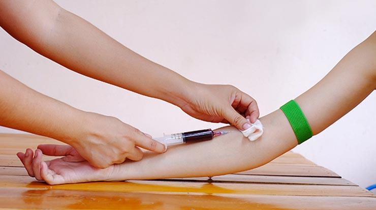 Prosedur Tes HIV di Prodia